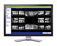 Digital X-ray Technology in Pennsylvania and Monaca PA - Covatto Family Dentistry
